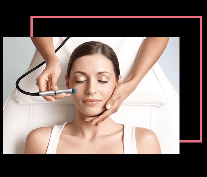 chemical peel treatment